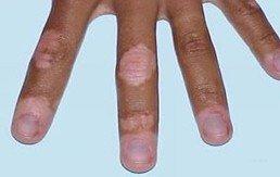 手部为什么易患白癜风