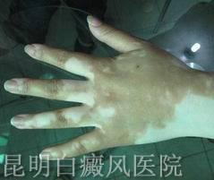 手部为什么会患上白癜风