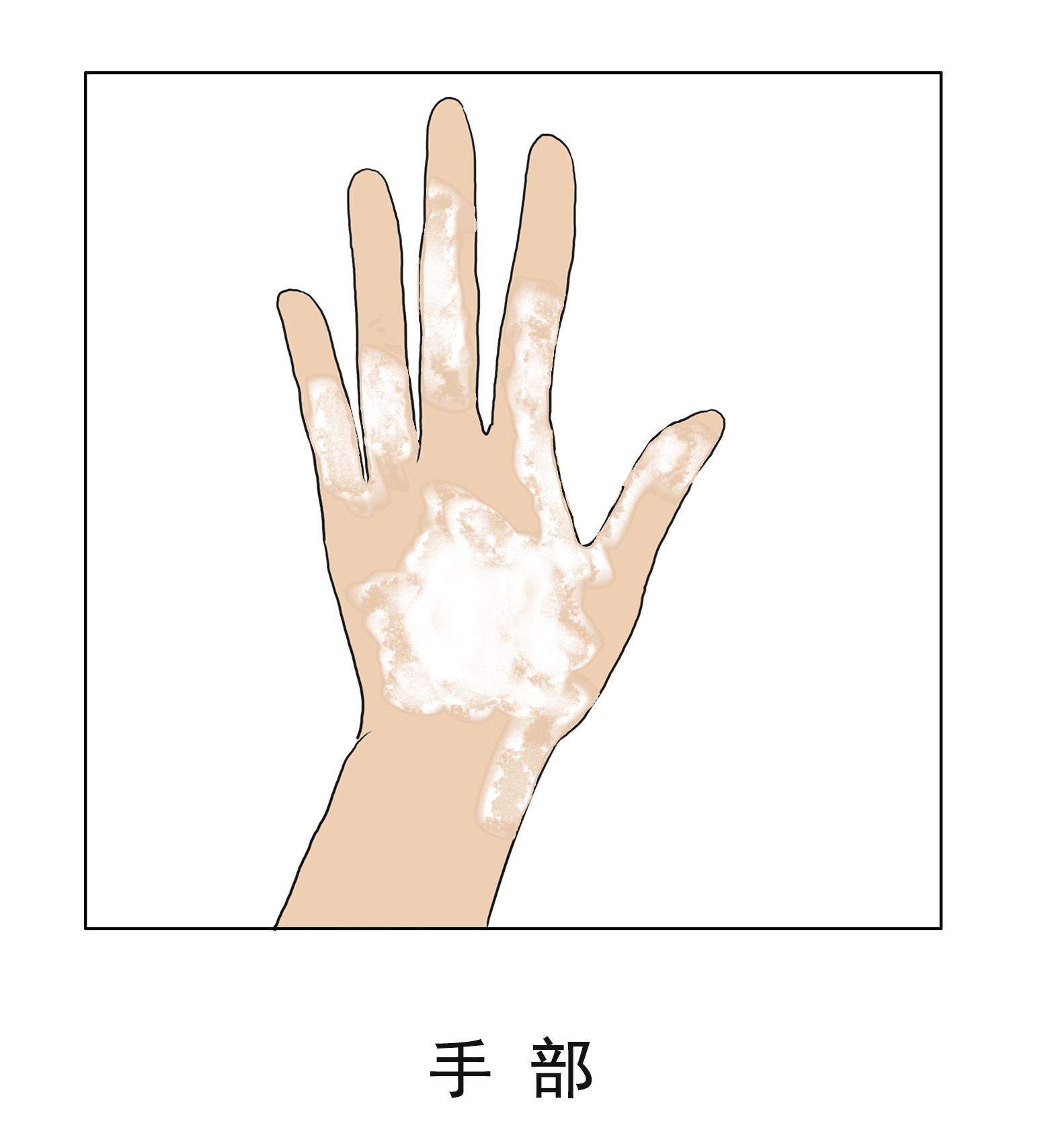 昆明白癜风医院介绍下手部白斑护理方法
