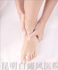 脚部白癜风患者需注意事项
