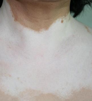 胸部白癜风该如何进行预防呢