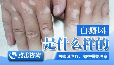 云南白斑医院排名:节段型白癜风有哪些症状