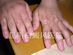 肢端型白癜风早期症状是怎样的