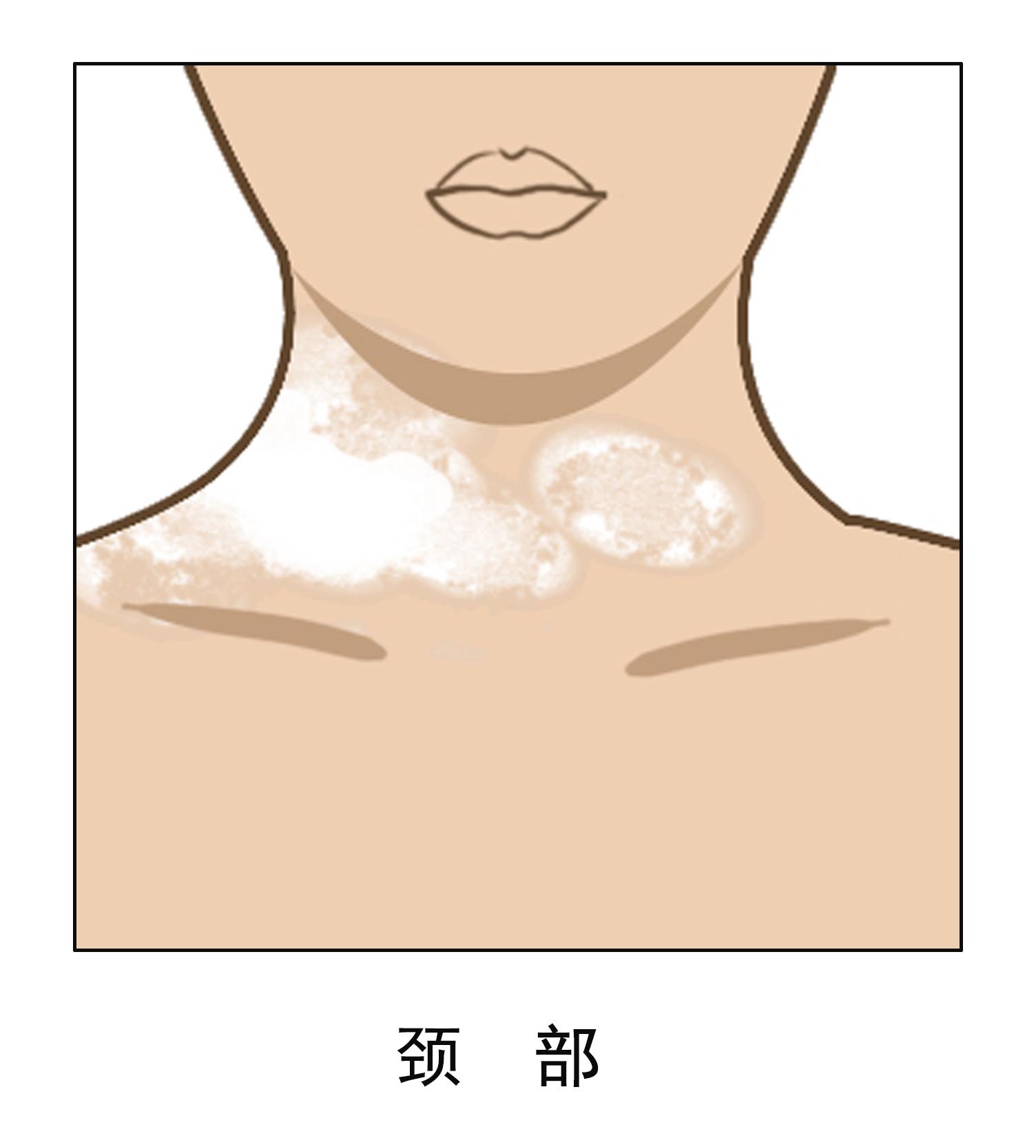 女性颈部有白癜风是如何引起的