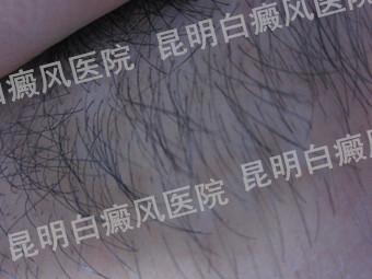 男性颈部白癜风半年