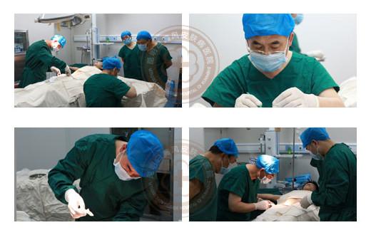 北京协和专家亲自手术 ReCell术前评估征集